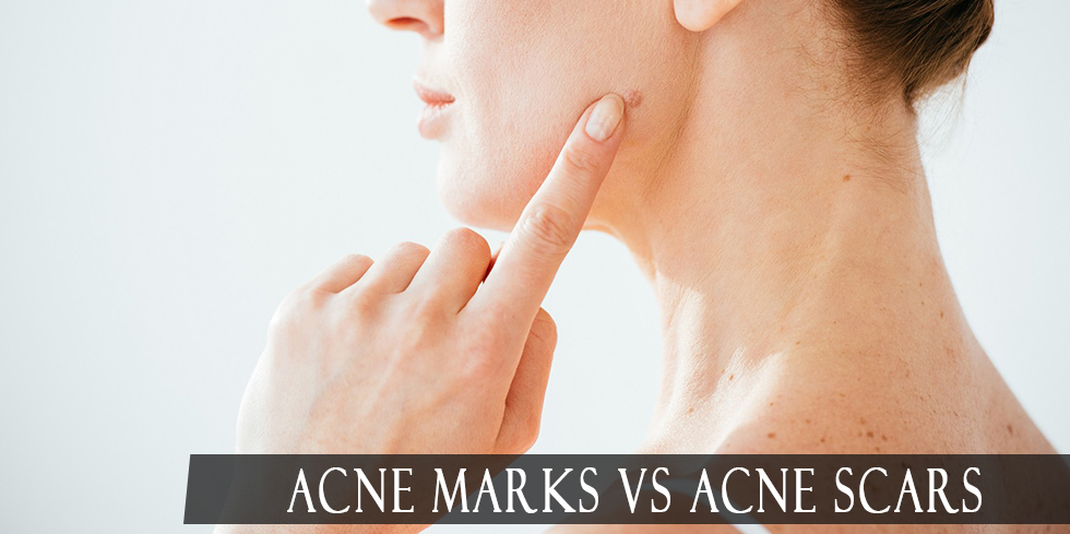 Acne marks and scars