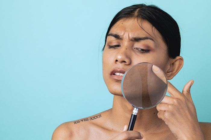 Woman with acne prone skin checking face
