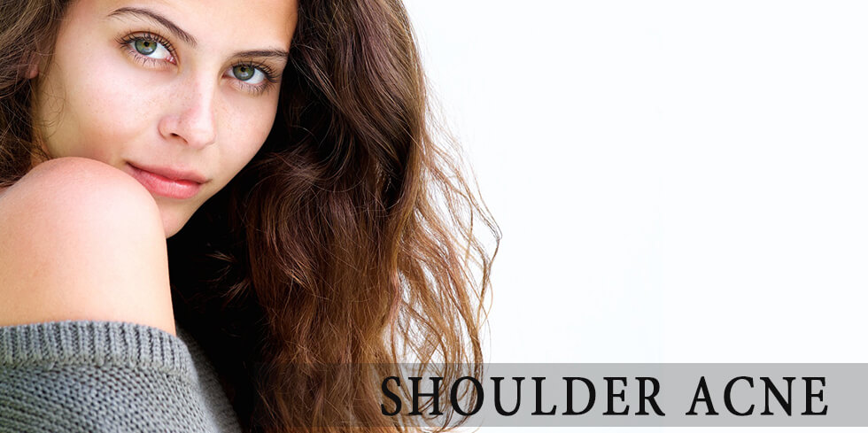 Woman with beautiful shoulders