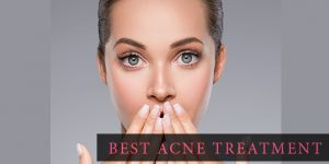 best acne treatments 2020