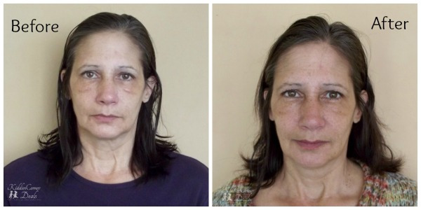 Before and After Elite Serum RX