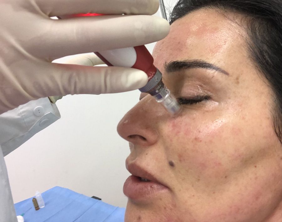 micro needling skin operation