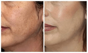 Before and After Microderm MD