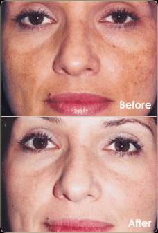 Microdermabrasion - What to Look For
