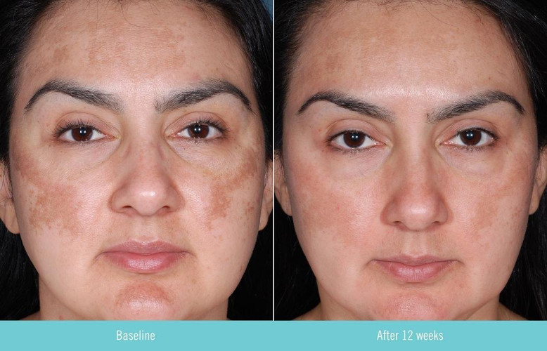 Obagi Nu Derm Clear before and after