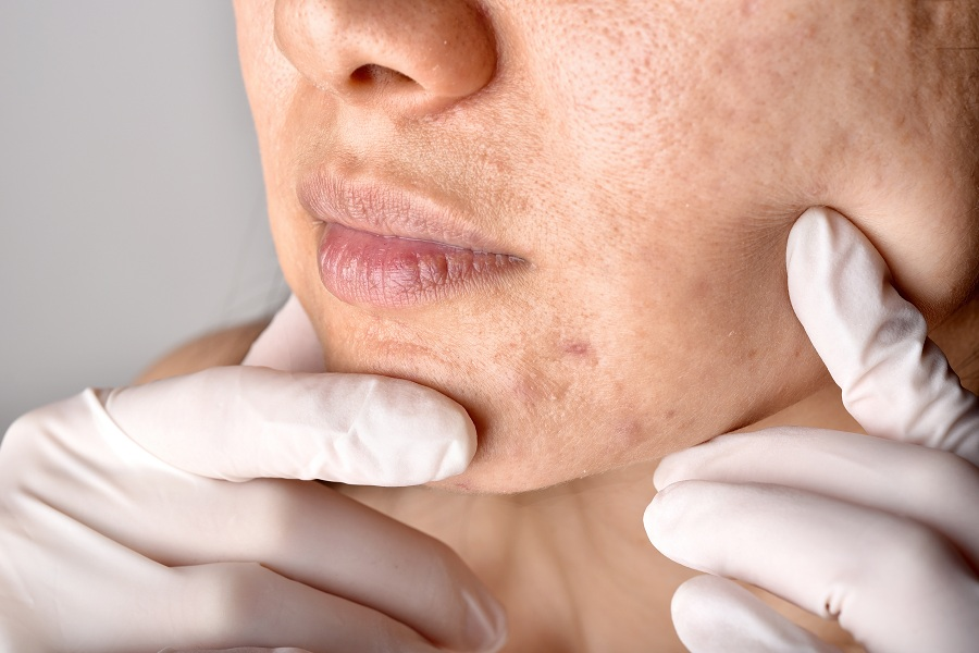 skin doctor examining patient face